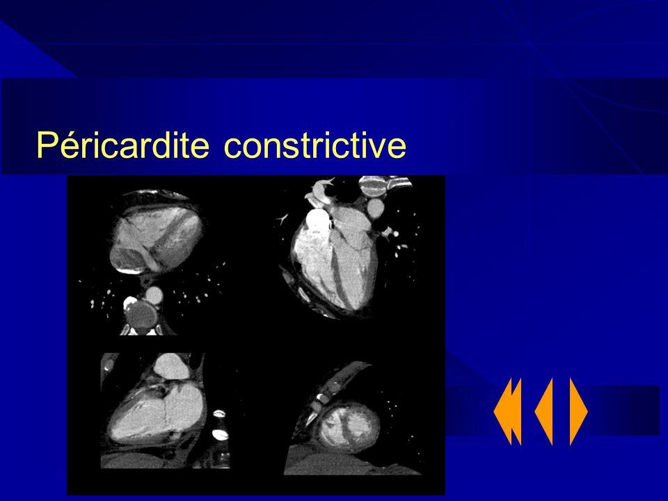 Péricardite constrictive