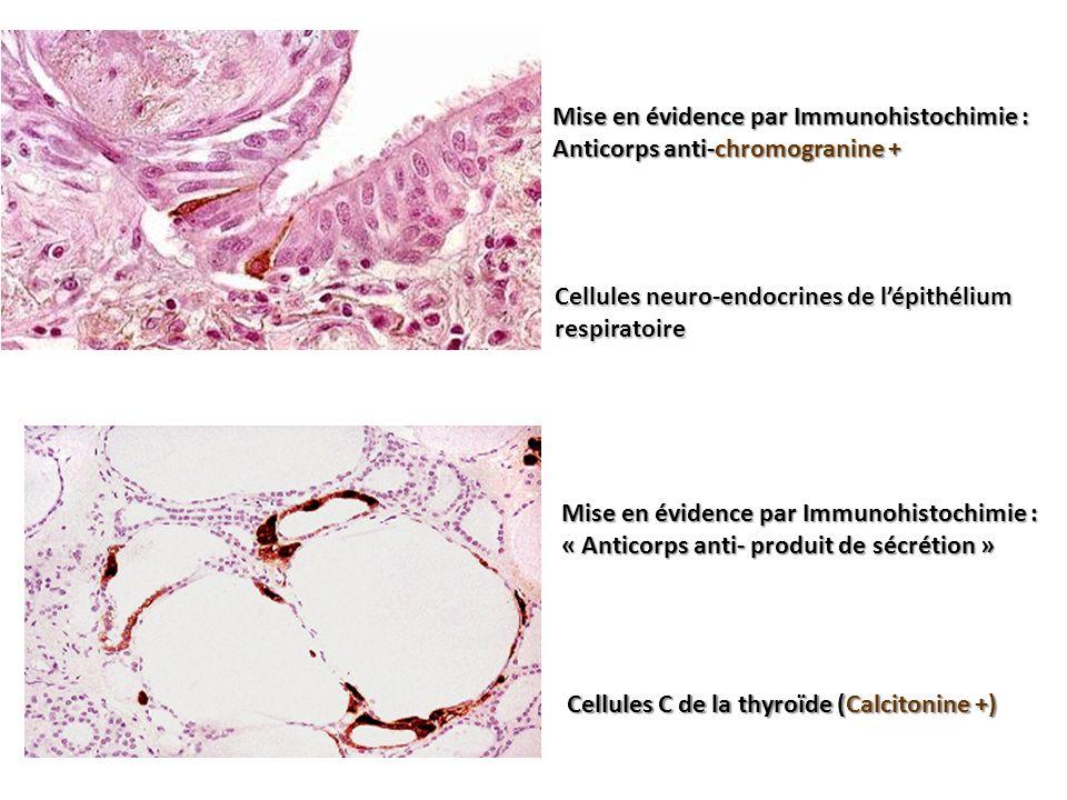 Mise en évidence par Immunohistochimie : Anticorps anti-chromogranine + Mise en évidence par Immunohistochimie : « Anticorps anti- produit de sécrétio
