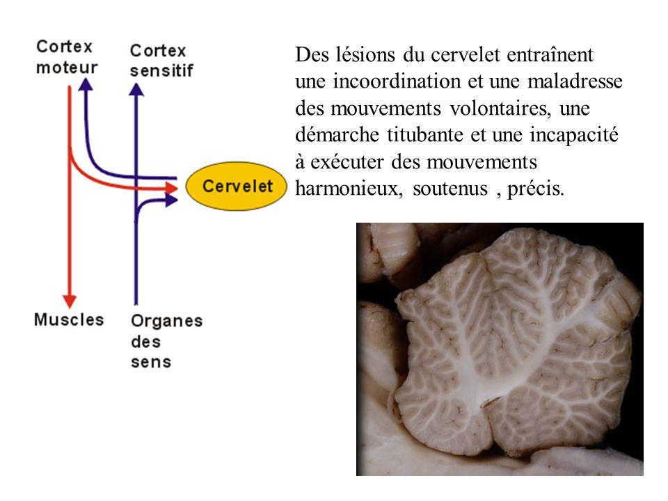 Des lésions du cervelet entraînent une incoordination et une maladresse des mouvements volontaires, une démarche titubante et une incapacité à exécute
