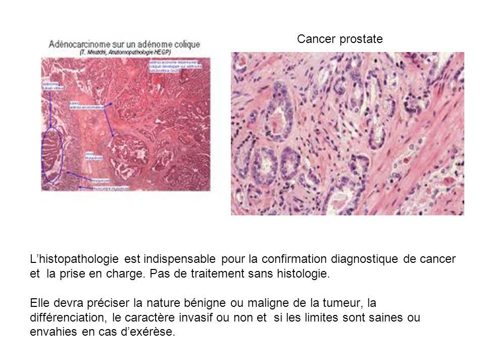 Lhistopathologie est indispensable pour la confirmation diagnostique de cancer et la prise en charge. Pas de traitement sans histologie. Elle devra pr