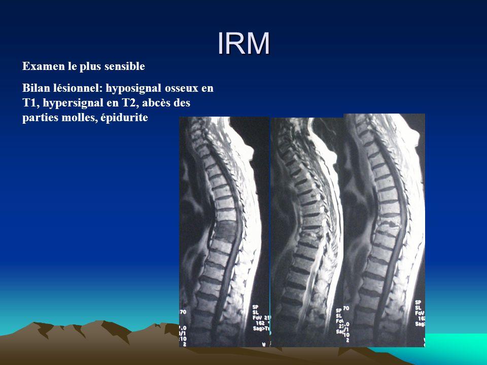 IRM Examen le plus sensible Bilan lésionnel: hyposignal osseux en T1, hypersignal en T2, abcès des parties molles, épidurite