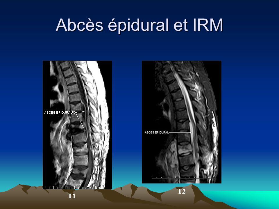 Abcès épidural et IRM T1 T2