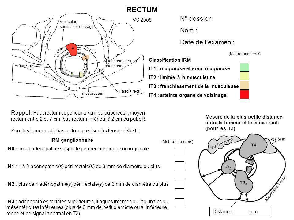 Fascia recti mesorectum Muqueuse et sous muqueuse musculeuse Vésicules séminales ou vagin RECTUM VS 2008 Classification IRM IT1 : muqueuse et sous-muq