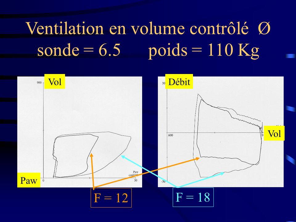 Ventilation en volume contrôlé Ø sonde = 6.5 poids = 110 Kg F = 12 F = 18 Débit Vol Paw Vol