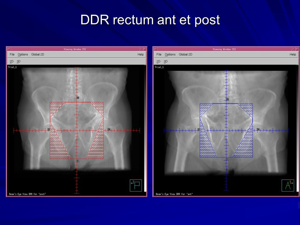 DDR rectum ant et post