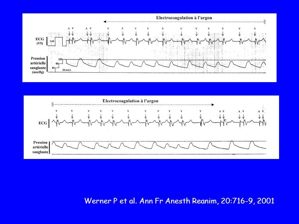 Werner P et al. Ann Fr Anesth Reanim, 20:716-9, 2001