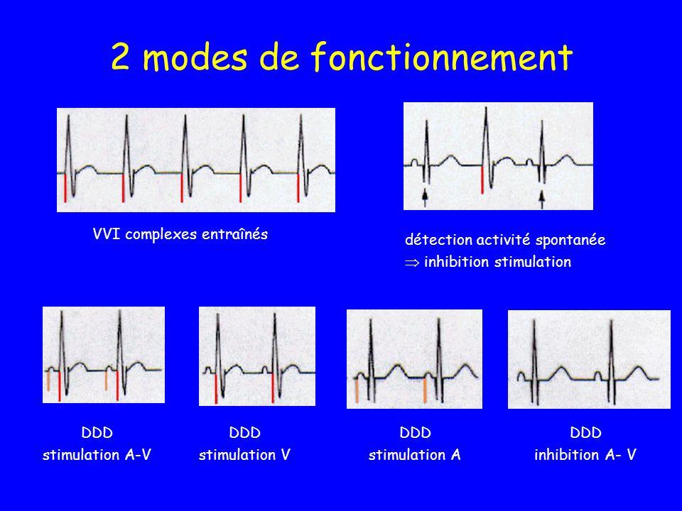 2 modes de fonctionnement VVI complexes entraînés détection activité spontanée inhibition stimulation DDD stimulation A-V DDD stimulation V DDD stimul