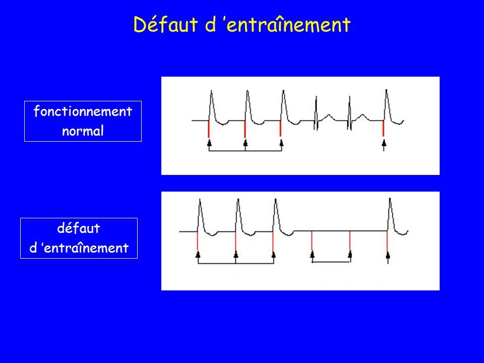 DAI prise en charge PRE-OPERATOIRE (1) 1) identification cardiopathie associée 2) marque modèle & date d implantation 3) suivi depuis implantation CARNET interrogatoire du patient +++ 4) kaliémie 5) RxT