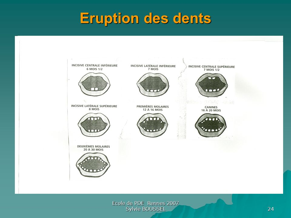 Ecole de PDE Rennes 2007 Sylvie BOUSSEL 24 Eruption des dents