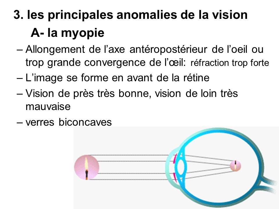 3. les principales anomalies de la vision A- la myopie –Allongement de laxe antéropostérieur de loeil ou trop grande convergence de lœil: réfraction t