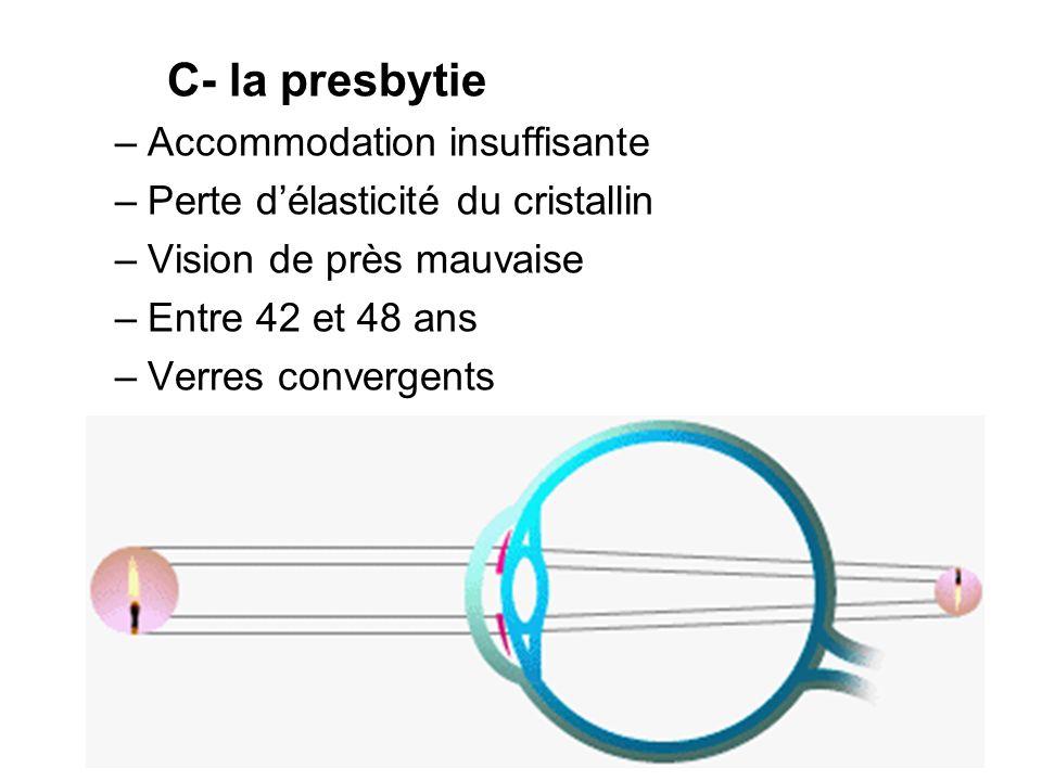 C- la presbytie –Accommodation insuffisante –Perte délasticité du cristallin –Vision de près mauvaise –Entre 42 et 48 ans –Verres convergents