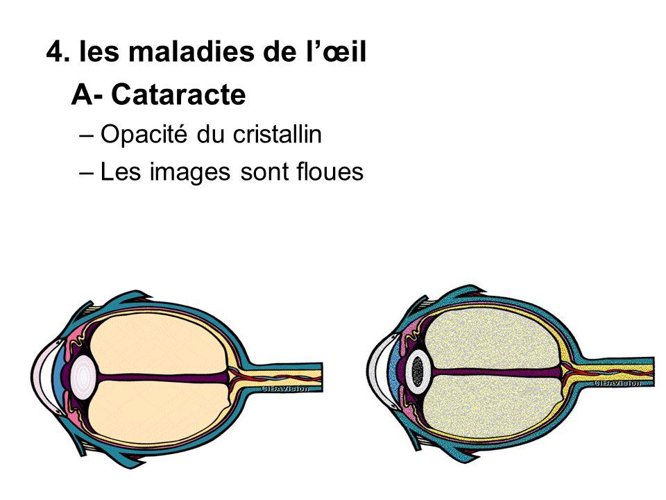 4. les maladies de lœil A- Cataracte –Opacité du cristallin –Les images sont floues
