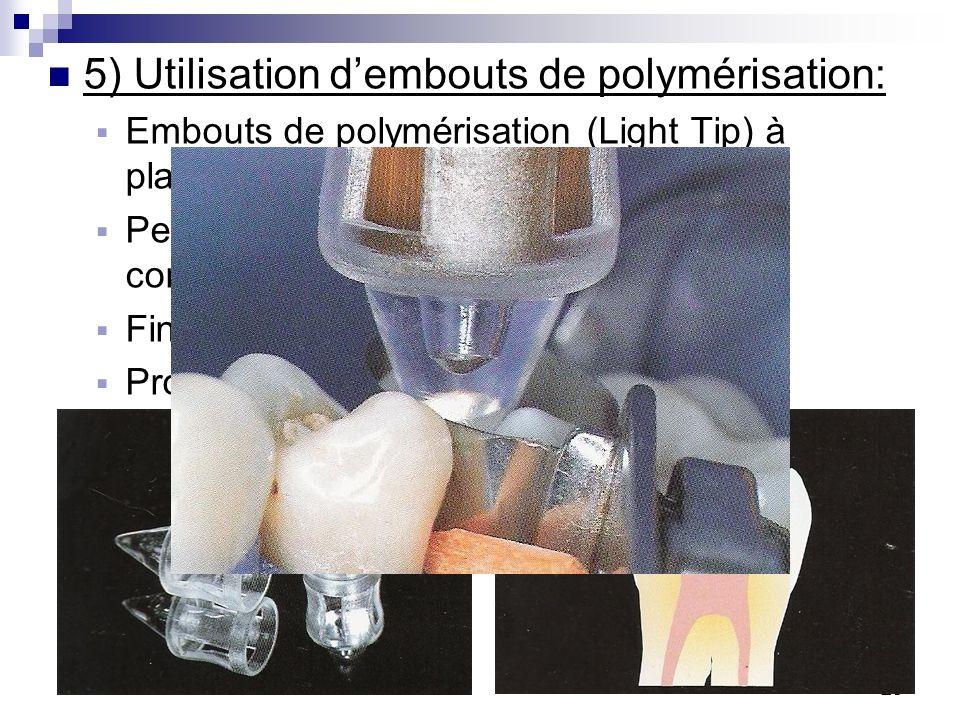 20 5) Utilisation dembouts de polymérisation: Embouts de polymérisation (Light Tip) à placer à lextrémité de la lampe. Permet de condenser et de polym