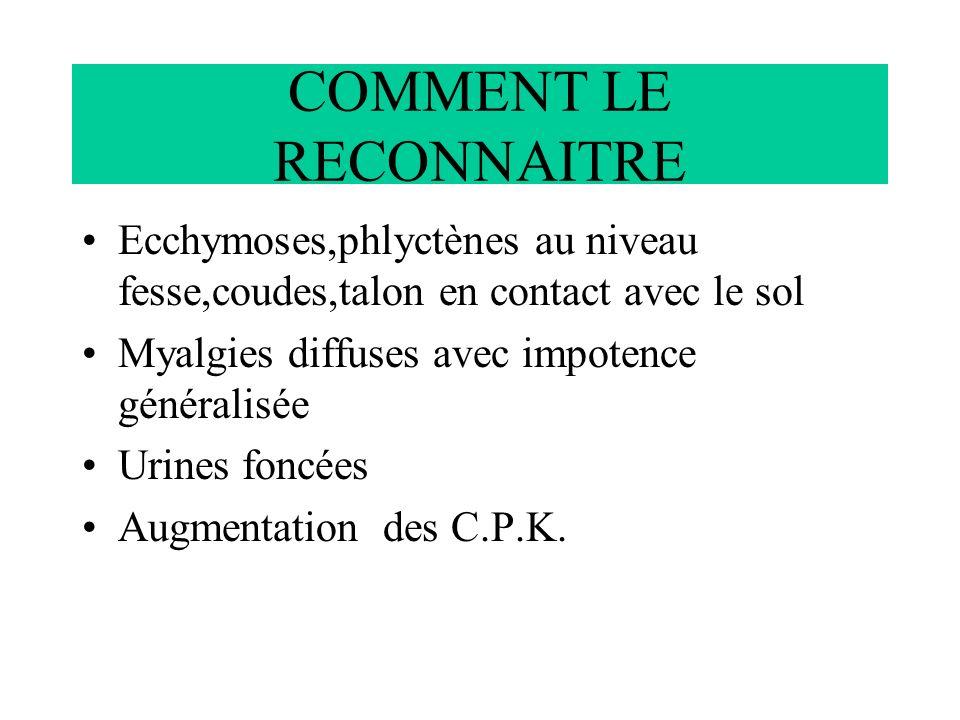COMMENT LE RECONNAITRE Ecchymoses,phlyctènes au niveau fesse,coudes,talon en contact avec le sol Myalgies diffuses avec impotence généralisée Urines f