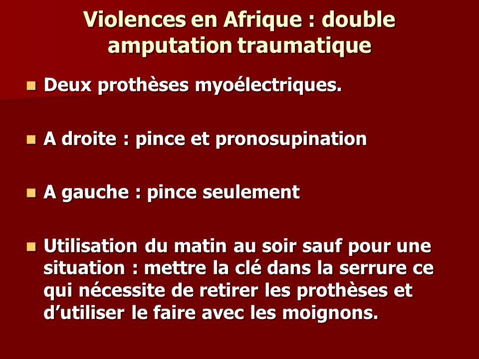 Violences en Afrique : double amputation traumatique Deux prothèses myoélectriques. Deux prothèses myoélectriques. A droite : pince et pronosupination