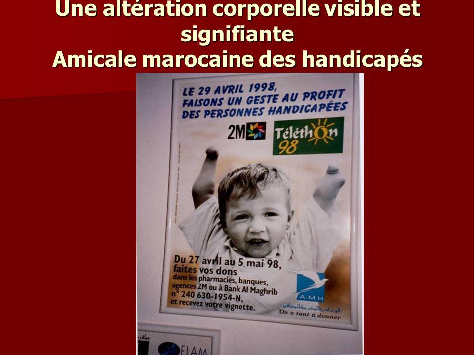 Une altération corporelle visible et signifiante Amicale marocaine des handicapés
