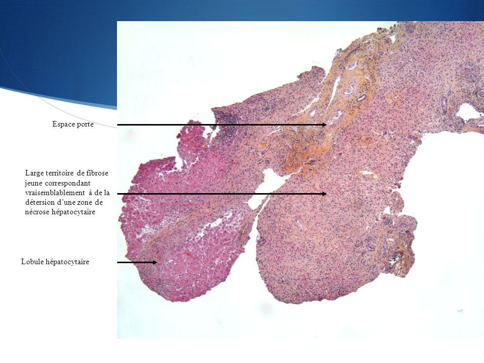 Espace porte Large territoire de fibrose jeune correspondant vraisemblablement à de la détersion dune zone de nécrose hépatocytaire Lobule hépatocytai