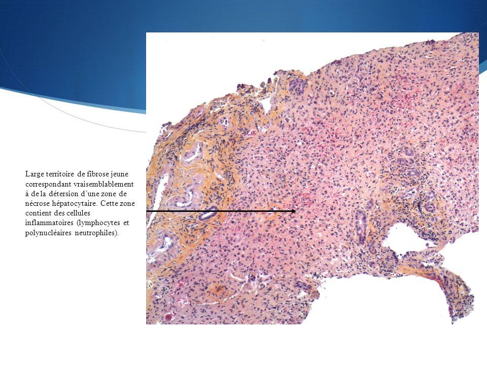 Large territoire de fibrose jeune correspondant vraisemblablement à de la détersion dune zone de nécrose hépatocytaire. Cette zone contient des cellul