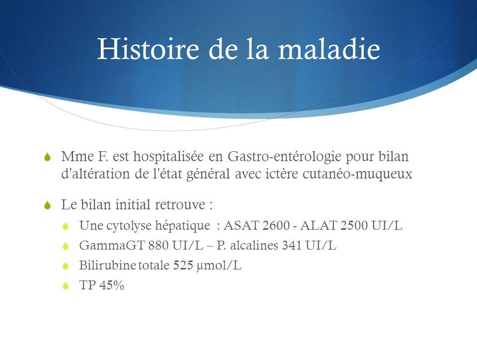 Histoire de la maladie Mme F. est hospitalisée en Gastro-entérologie pour bilan daltération de létat général avec ictère cutanéo-muqueux Le bilan init