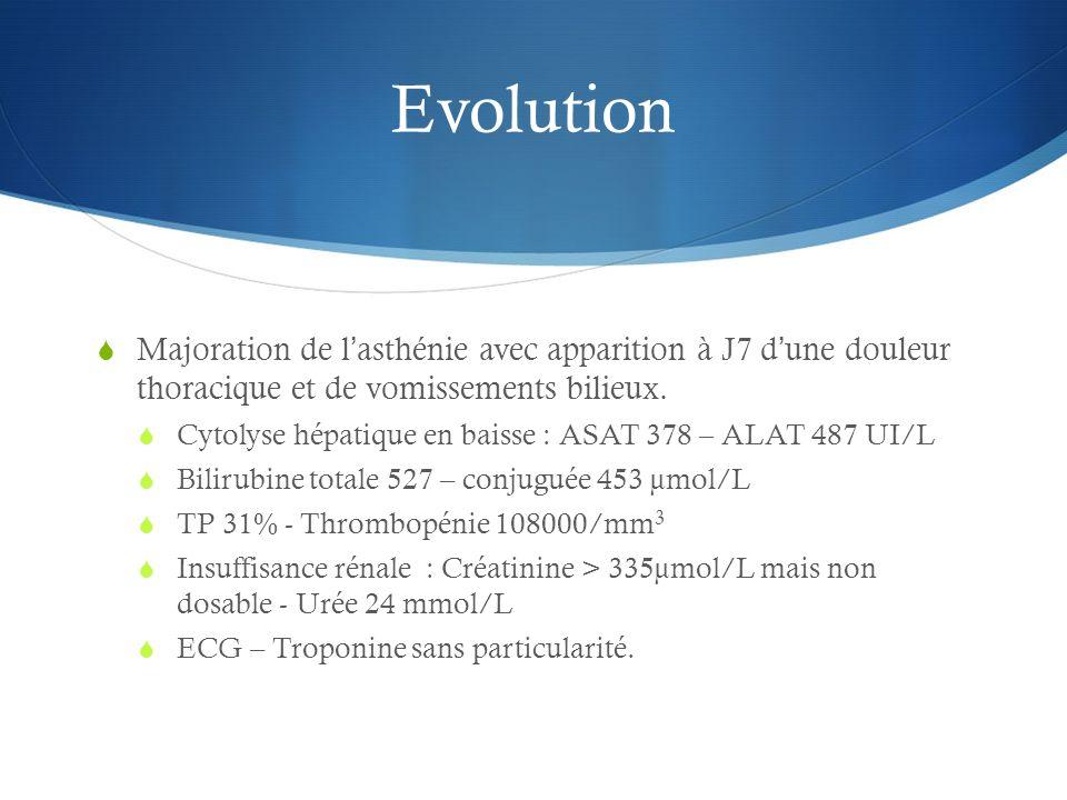 Evolution Majoration de lasthénie avec apparition à J7 dune douleur thoracique et de vomissements bilieux. Cytolyse hépatique en baisse : ASAT 378 – A