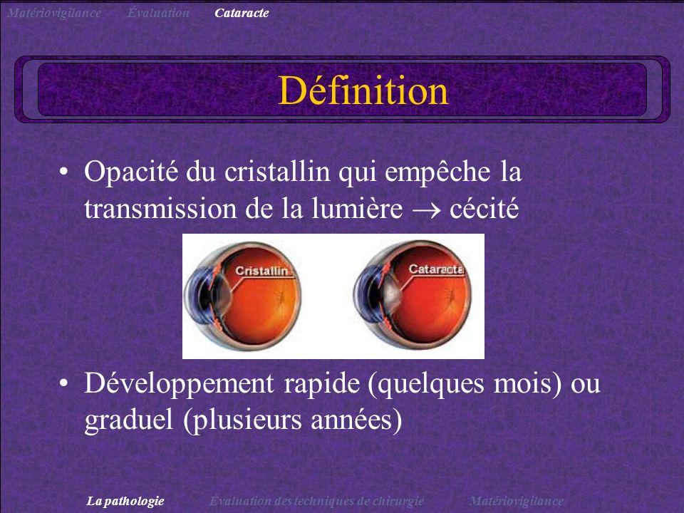 Définition Opacité du cristallin qui empêche la transmission de la lumière cécité Développement rapide (quelques mois) ou graduel (plusieurs années) L