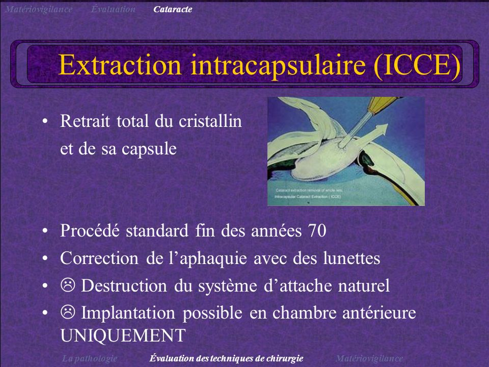 Extraction intracapsulaire (ICCE) Retrait total du cristallin et de sa capsule Procédé standard fin des années 70 Correction de laphaquie avec des lun