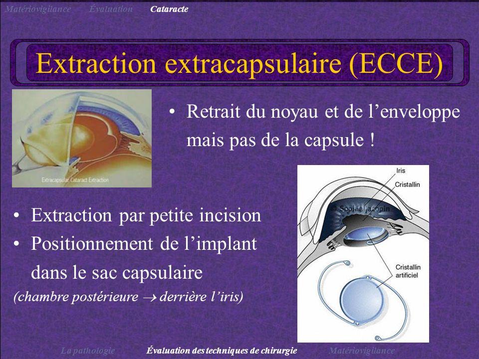 Extraction extracapsulaire (ECCE) Retrait du noyau et de lenveloppe mais pas de la capsule ! Extraction par petite incision Positionnement de limplant