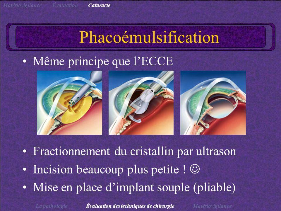 Phacoémulsification Même principe que lECCE Fractionnement du cristallin par ultrason Incision beaucoup plus petite ! Mise en place dimplant souple (p