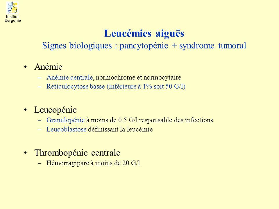 Leucémies aiguës Signes biologiques : pancytopénie + syndrome tumoral Anémie –Anémie centrale, normochrome et normocytaire –Réticulocytose basse (infé