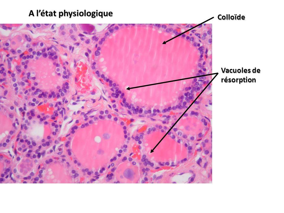 Colloïde Vacuoles de résorption A létat physiologique