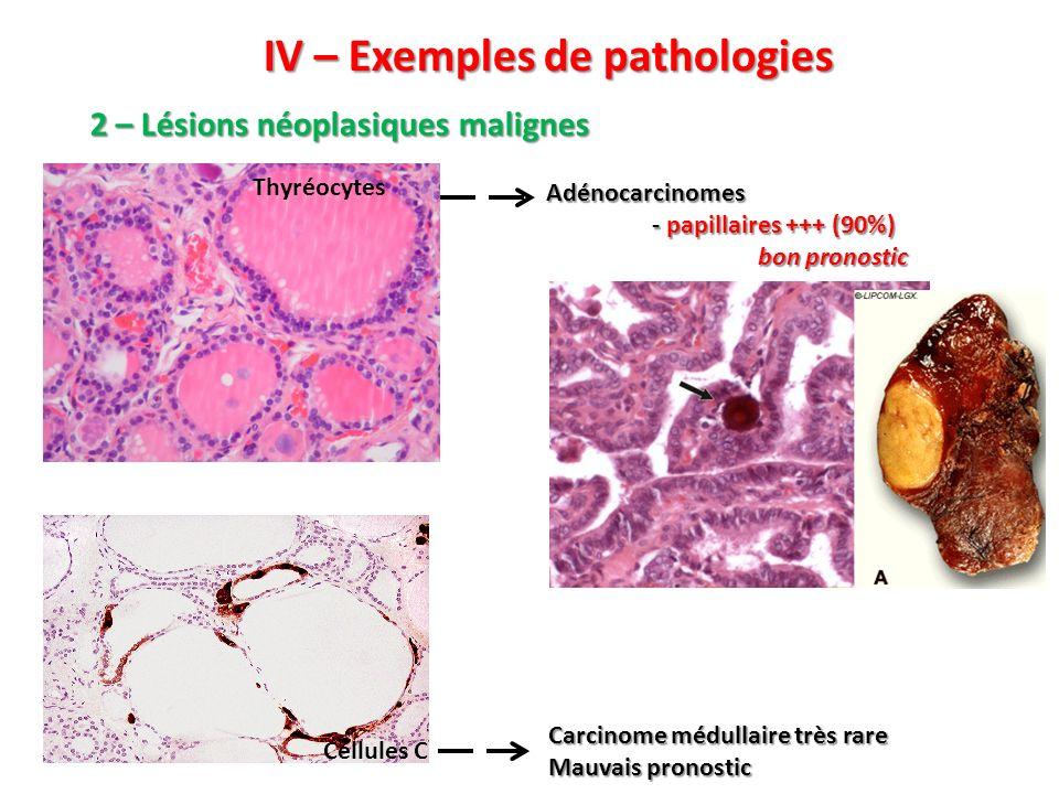 IV – Exemples de pathologies Adénocarcinomes - papillaires +++ (90%) bon pronostic Carcinome médullaire très rare Mauvais pronostic 2 – Lésions néopla