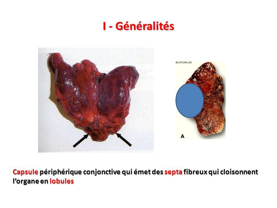 2.1 - Flaques de colloïde Striations Fentes de rétraction - Matériel amorphe coloré en rose, rouge sur lhémalun-éosine +/- calcifications (dépôts violacés) - Thyroglobuline (glycoprotéine iodée = forme de stockage de T4) - Aspects artéfactuels : fentes de rétraction et striations Calcifications