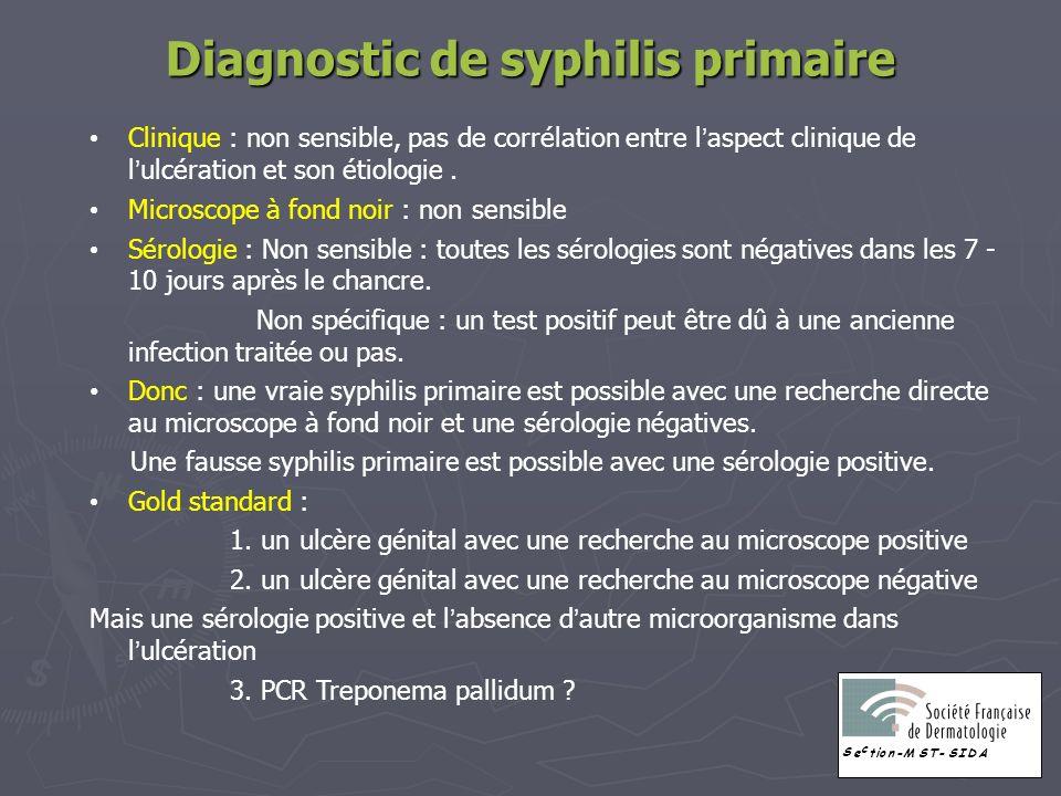 Diagnostic de syphilis primaire Clinique : non sensible, pas de corrélation entre laspect clinique de lulcération et son étiologie. Microscope à fond