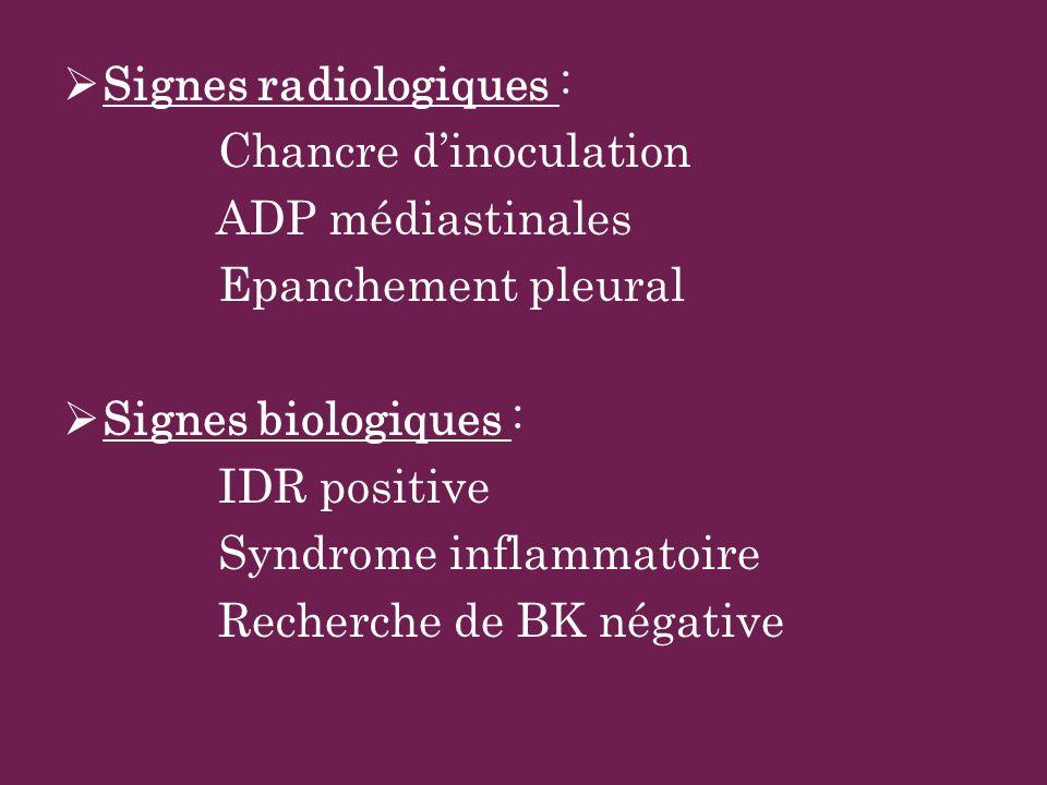 Signes radiologiques : Chancre dinoculation ADP médiastinales Epanchement pleural Signes biologiques : IDR positive Syndrome inflammatoire Recherche d
