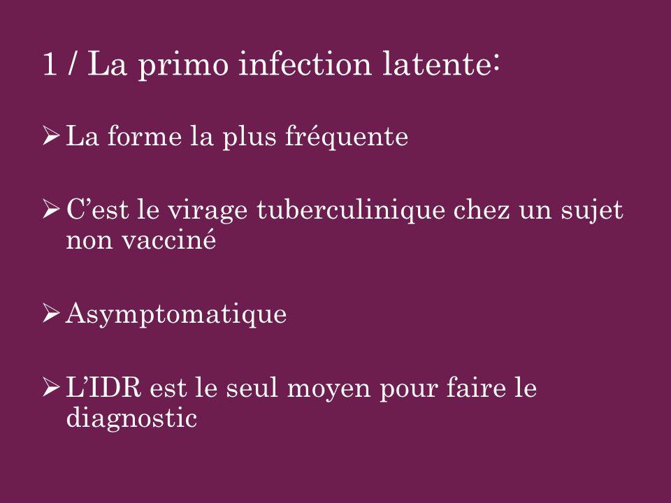 2/ La primo infection patente Apparait quand les défenses immunitaires deviennent insuffisantes Signes cliniques : souvent modères et peu évocateurs AEG Toux fébrile Pneumopathie trainante