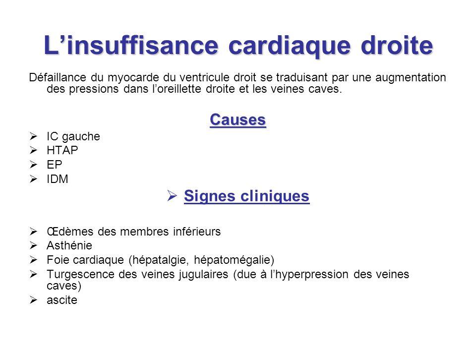 Linsuffisance cardiaque droite Défaillance du myocarde du ventricule droit se traduisant par une augmentation des pressions dans loreillette droite et