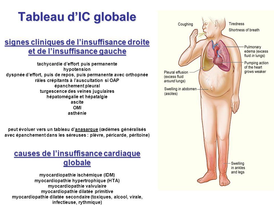 Tableau dIC globale signes cliniques de linsuffisance droite et de linsuffisance gauche causes de linsuffisance cardiaque globale Tableau dIC globale
