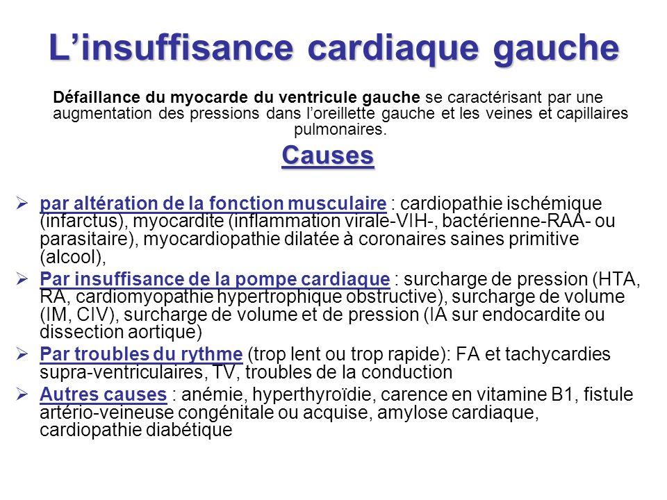 Linsuffisance cardiaque gauche Défaillance du myocarde du ventricule gauche se caractérisant par une augmentation des pressions dans loreillette gauch