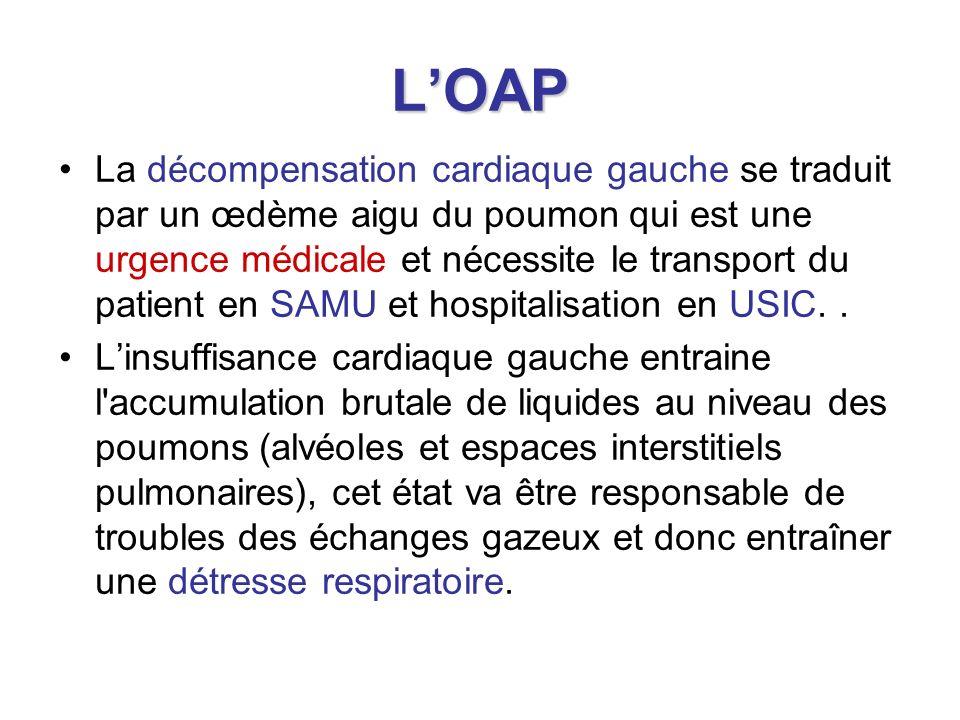 LOAP La décompensation cardiaque gauche se traduit par un œdème aigu du poumon qui est une urgence médicale et nécessite le transport du patient en SA