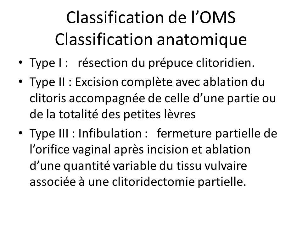 Classification de lOMS Classification anatomique Type I : résection du prépuce clitoridien. Type II : Excision complète avec ablation du clitoris acco