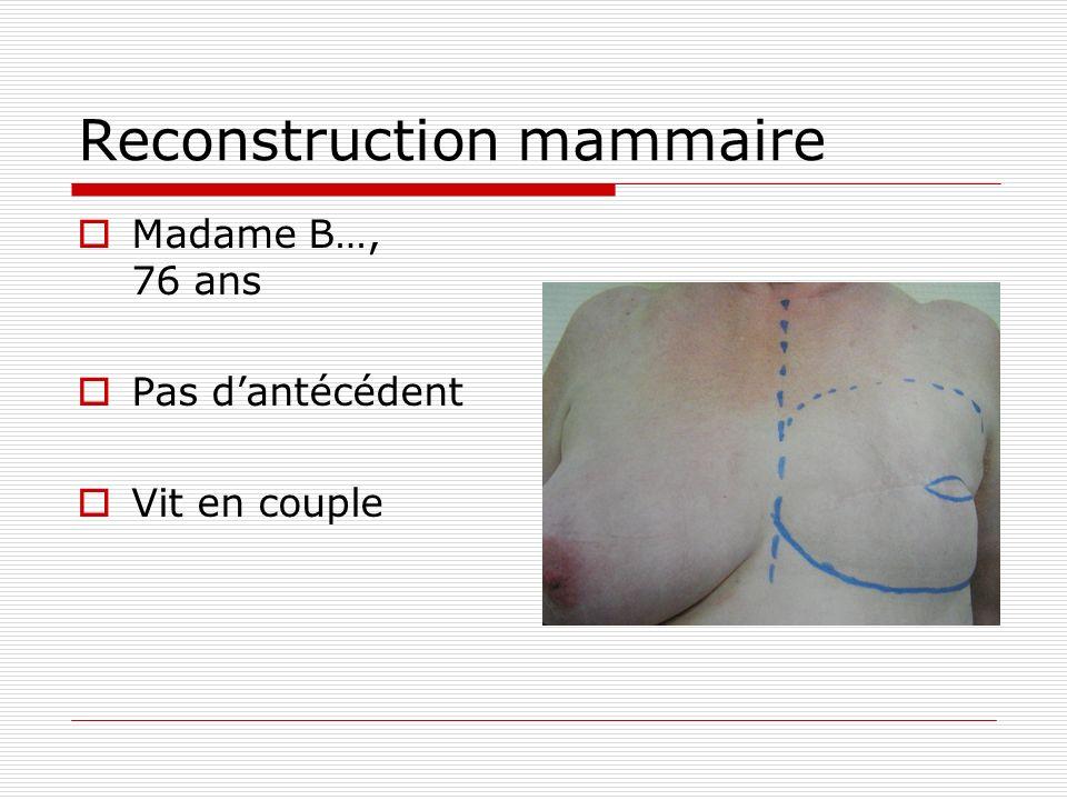 Reconstruction mammaire Madame B…, 76 ans Pas dantécédent Vit en couple