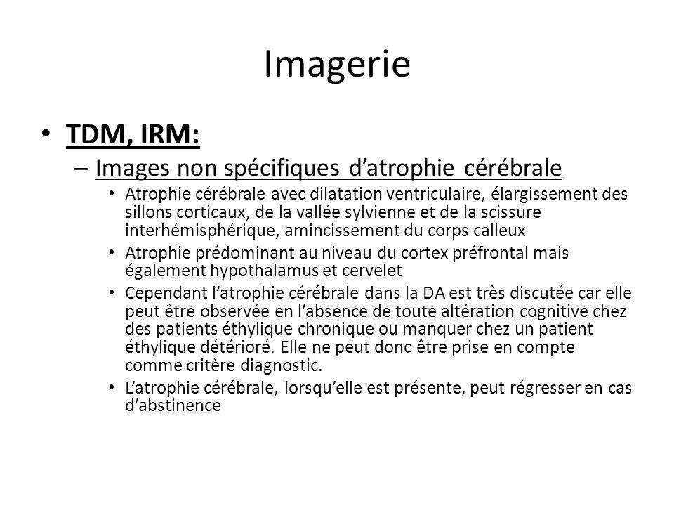 Imagerie TDM, IRM: – Images non spécifiques datrophie cérébrale Atrophie cérébrale avec dilatation ventriculaire, élargissement des sillons corticaux,