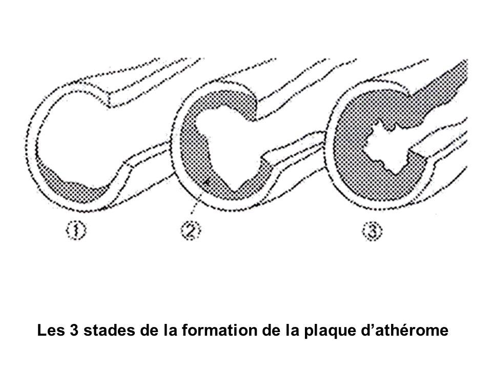 Les 3 stades de la formation de la plaque dathérome