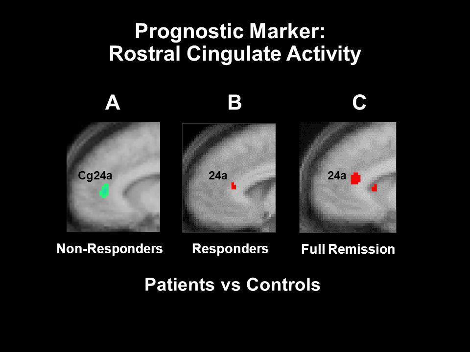 24a B Patients vs Controls Responders C Full Remission 24a Cg24a A Non-Responders Prognostic Marker: Rostral Cingulate Activity
