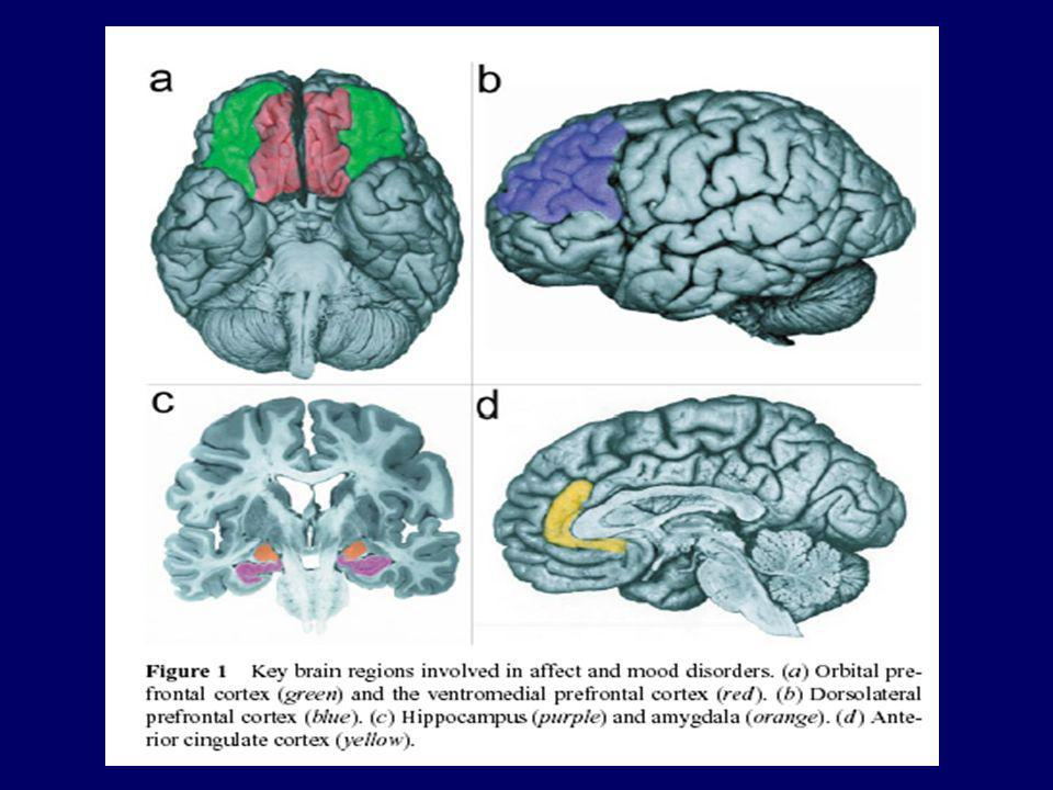Structural findings in Bipolar Disorder (I) Increase of Amygdala volume Decrease of subgenual volume Change in left dorsal cingulate volume No change in temporal and hippocampus volume Whitematter hyperintensities in young patients