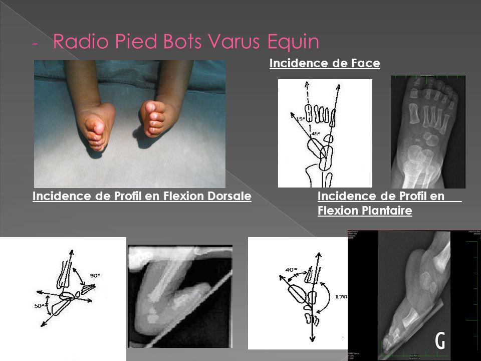- Radio Pied Bots Varus Equin Incidence de Face Incidence de Profil en Flexion DorsaleIncidence de Profil en Flexion Plantaire