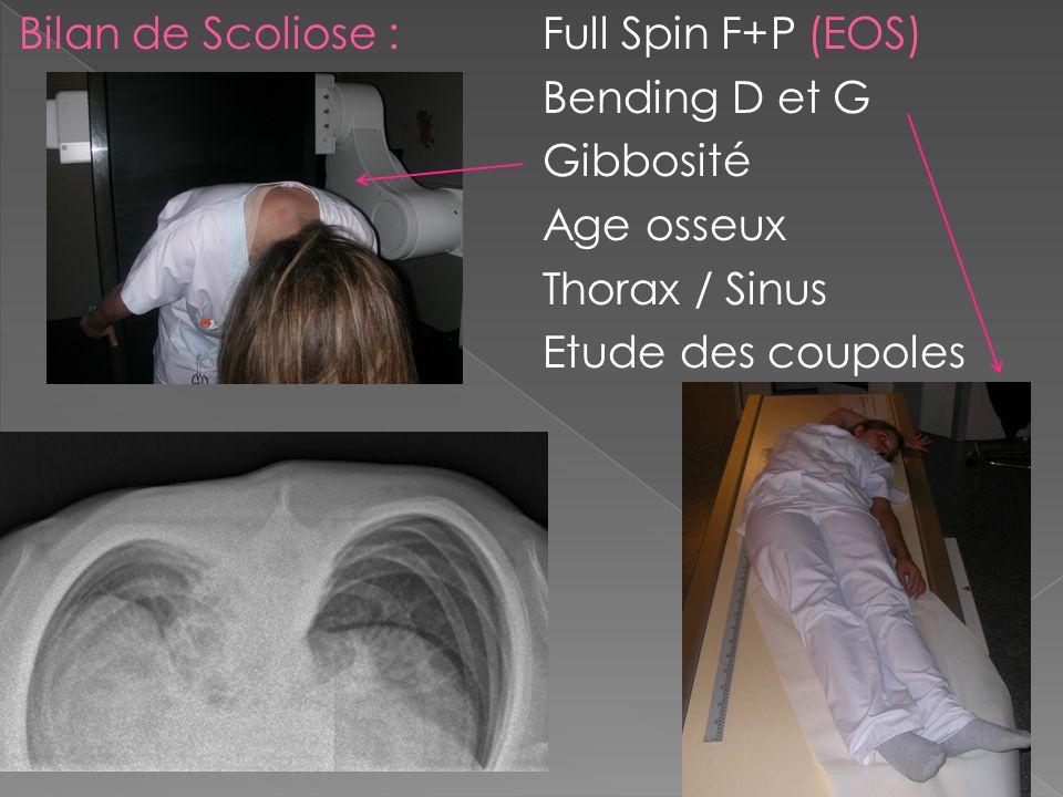 EOS Acquisition 2D Face + Profil en simultané Ultra low dose