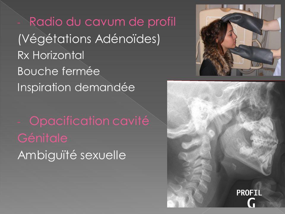 - Radio du cavum de profil (Végétations Adénoïdes) Rx Horizontal Bouche fermée Inspiration demandée - Opacification cavité Génitale Ambiguïté sexuelle