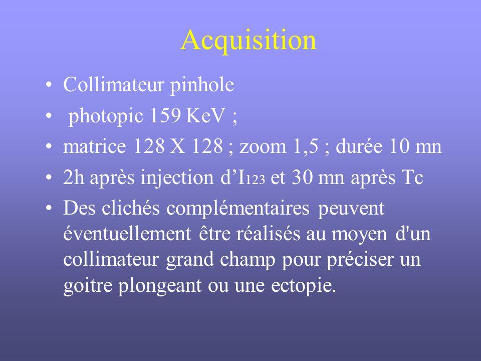 Acquisition Collimateur pinhole photopic 159 KeV ; matrice 128 X 128 ; zoom 1,5 ; durée 10 mn 2h après injection dI 123 et 30 mn après Tc Des clichés