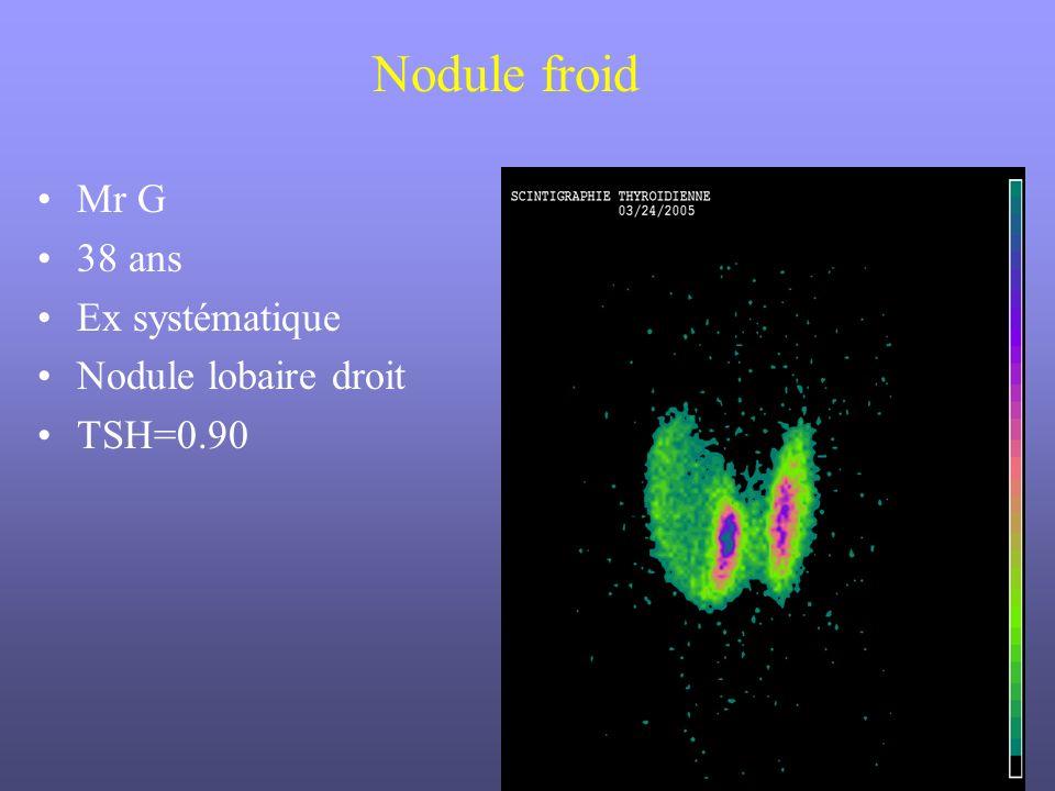 Mr G 38 ans Ex systématique Nodule lobaire droit TSH=0.90 Nodule froid